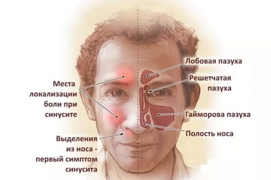 Синуситы лечение