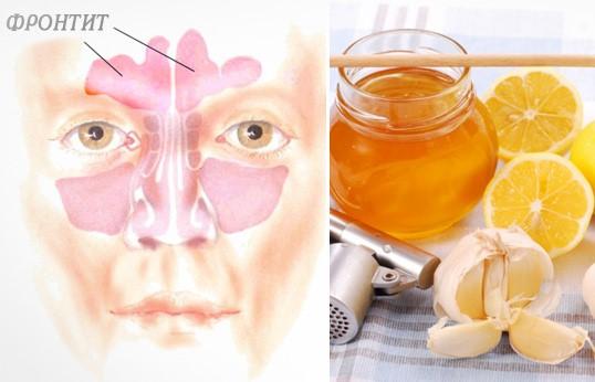 Народные методы лечения фронтита