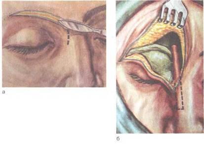Лечение гнойного фронтита хирургическим методом