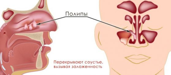 Кистозный синусит и полипы