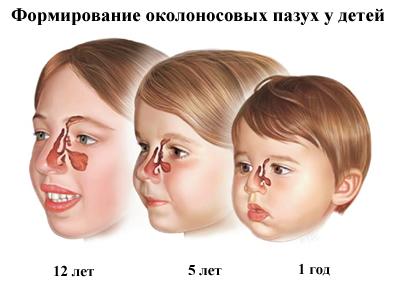Формирование носовых пазух у детей